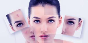 Acne Prone Skin Anti Aging
