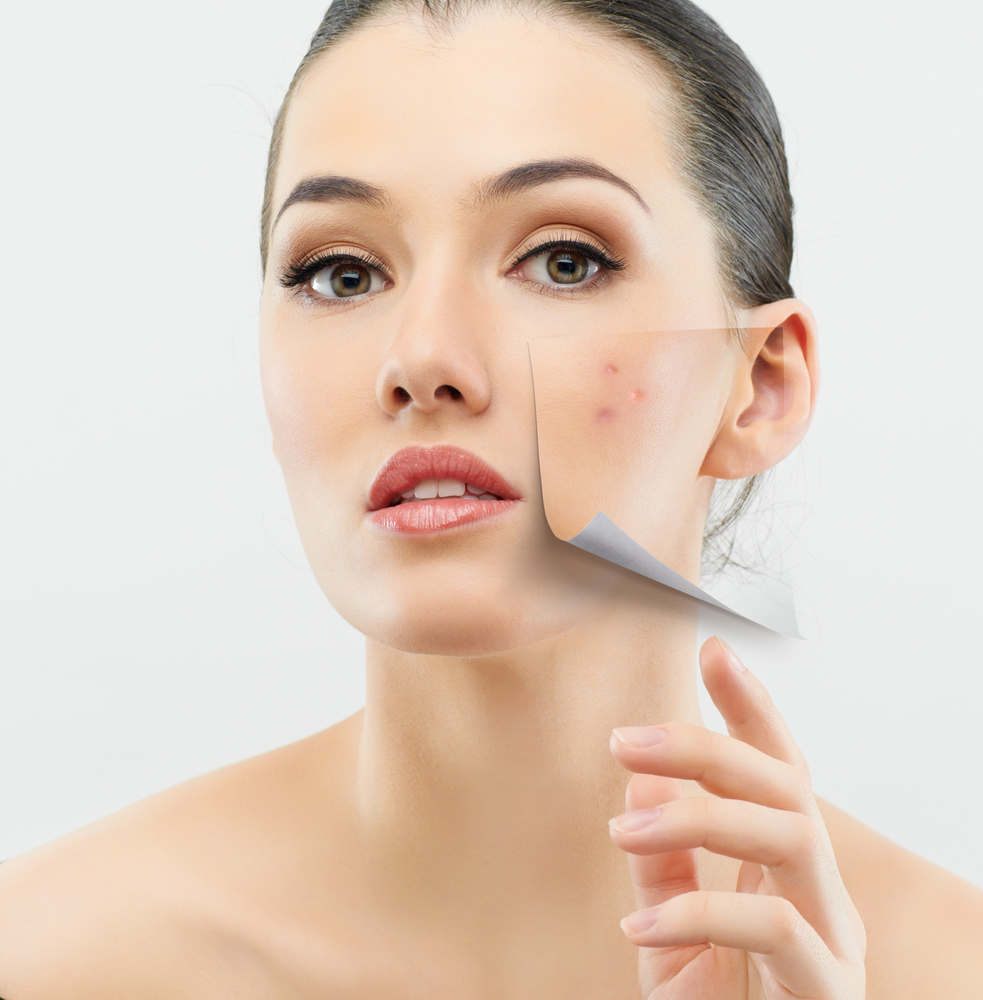 Anti Aging Tips for Acne Prone Skin