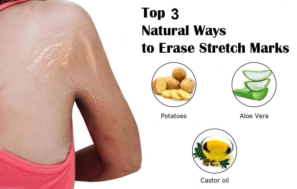 How to Get Rid of Stretch Marks Naturally How to Get Rid of Stretch Marks Naturally new photo